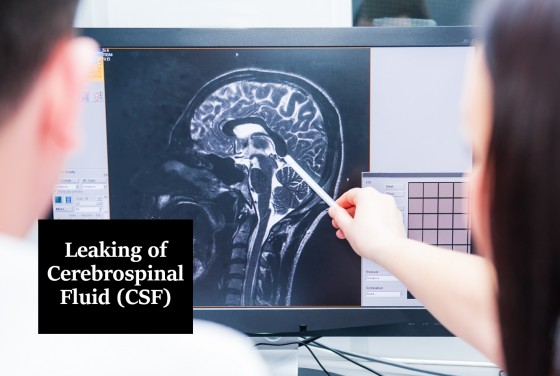 Leaking of Cerebrospinal Fluid (CSF)